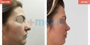 Rhinoplasty Turkey Before After - MCAN Health 11