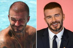 David Beckham Hair Transplant Before After
