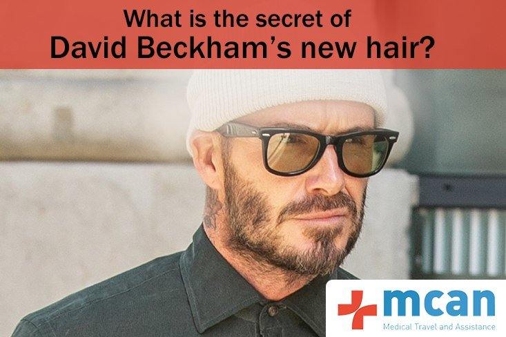 David Beckham Hair Transplant Proof