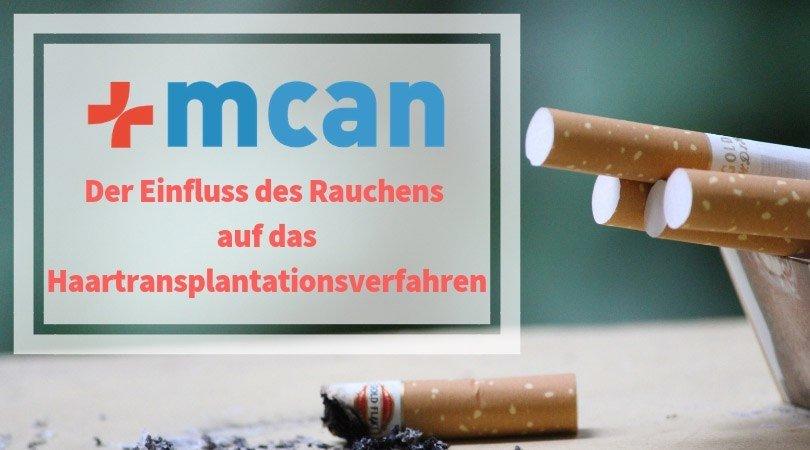 mcan-health-clinic-rauchen-haartransplantation-min