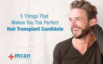 5-things-that-makes-you-the-perfect-hair-transplant-candidate-min