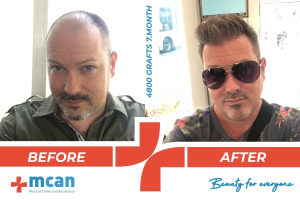 Hair Transplant Turkey Before After Banner