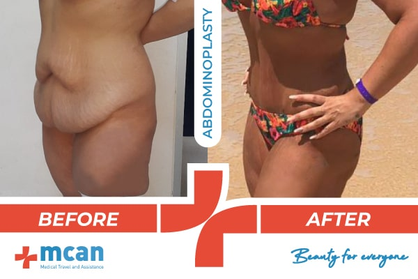Plastic Surgery Turkey Before After Banner 2