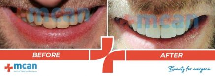 Dentistry Before After 01