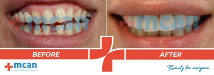 Dentistry Before After 06