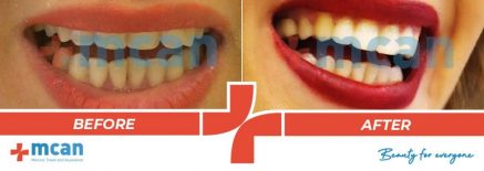 Dentistry Before After 07