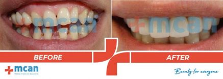 Dentistry Before After 10