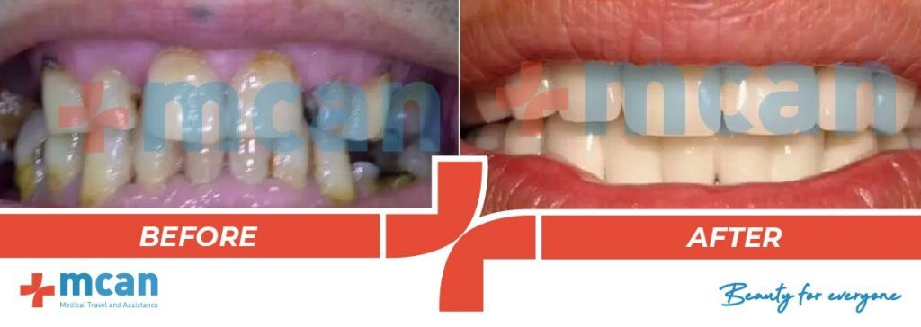 Dentistry Before After 11
