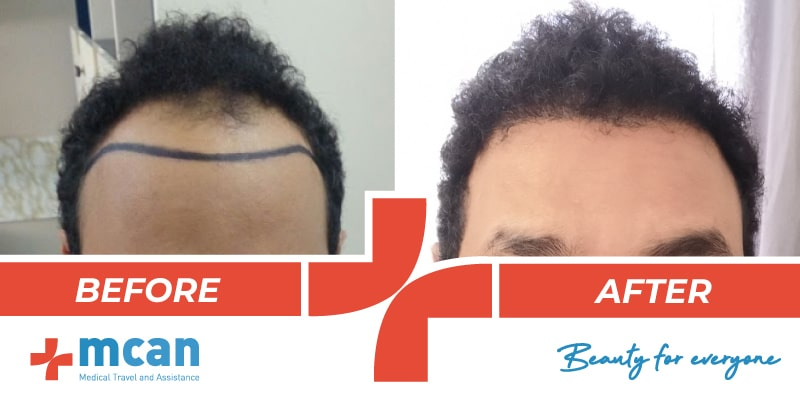 Hair Transplant Before After - 01