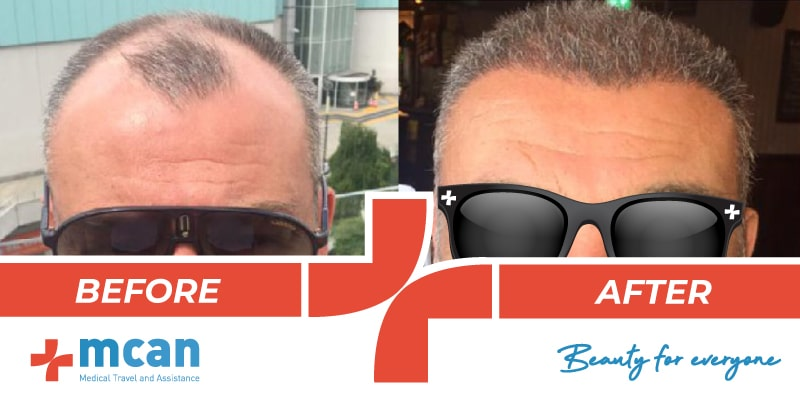 Hair Transplant Before After - 10