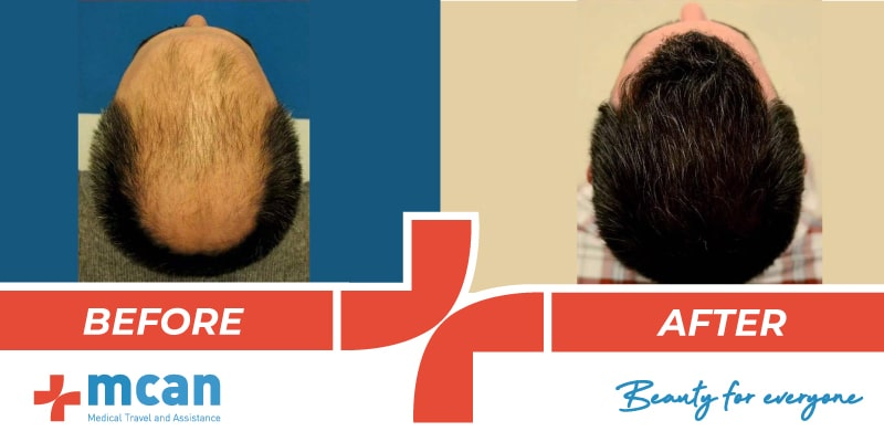 Hair Transplant Before After - 12