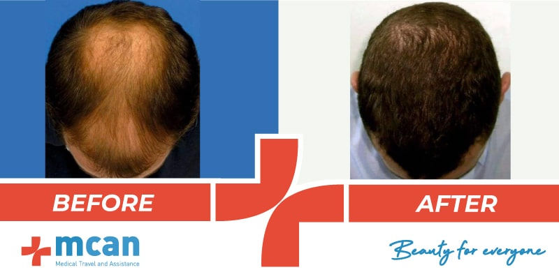 Hair Transplant Before After - 13
