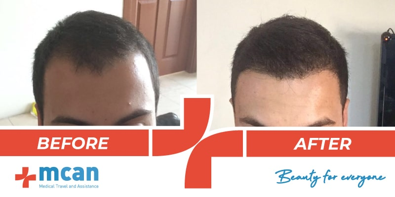 Hair Transplant Before After - 15