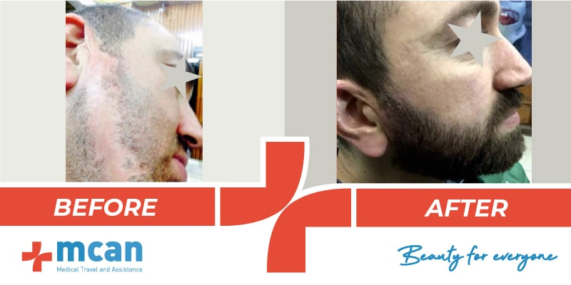 Hair Transplant Before After - 16