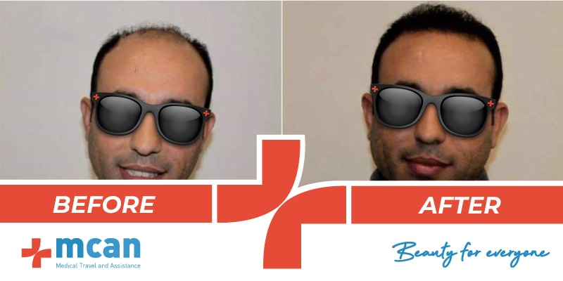 Hair Transplant Before After - 18
