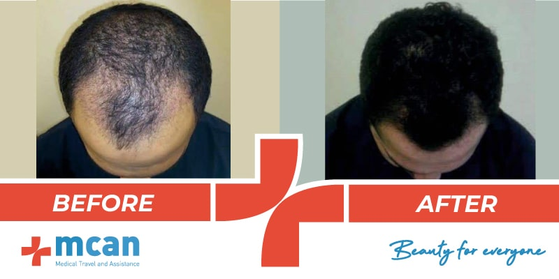 Hair Transplant Before After - 19