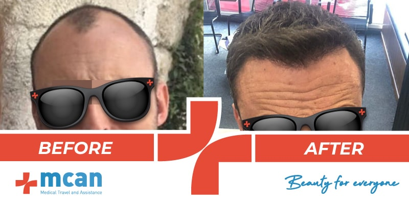 Hair Transplant Before After - 02
