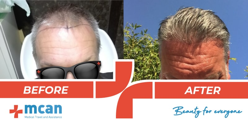 Hair Transplant Before After - 4