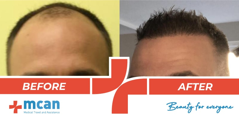Hair Transplant Before After - 6