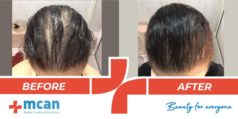 Hair Transplant Before After - 7