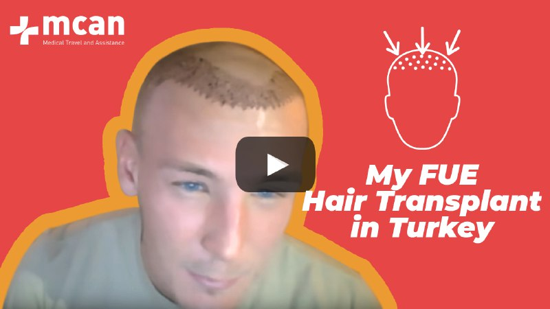 Sam Modlinsky - FUE Hair Transplant