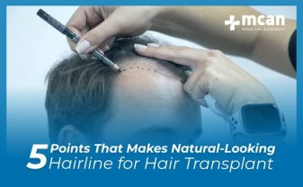 5 factors that makes natural-looking hairline for hair transplant