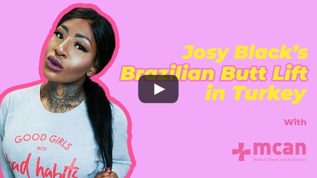 Brazilian Butt Lift in Turkey: Josy Black's Amazing Journey
