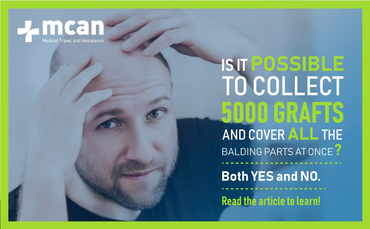 Can Hair Transplant Cover The Whole Head?