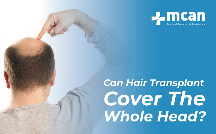 can hair transplant cover the whole head blog by MCAN Health
