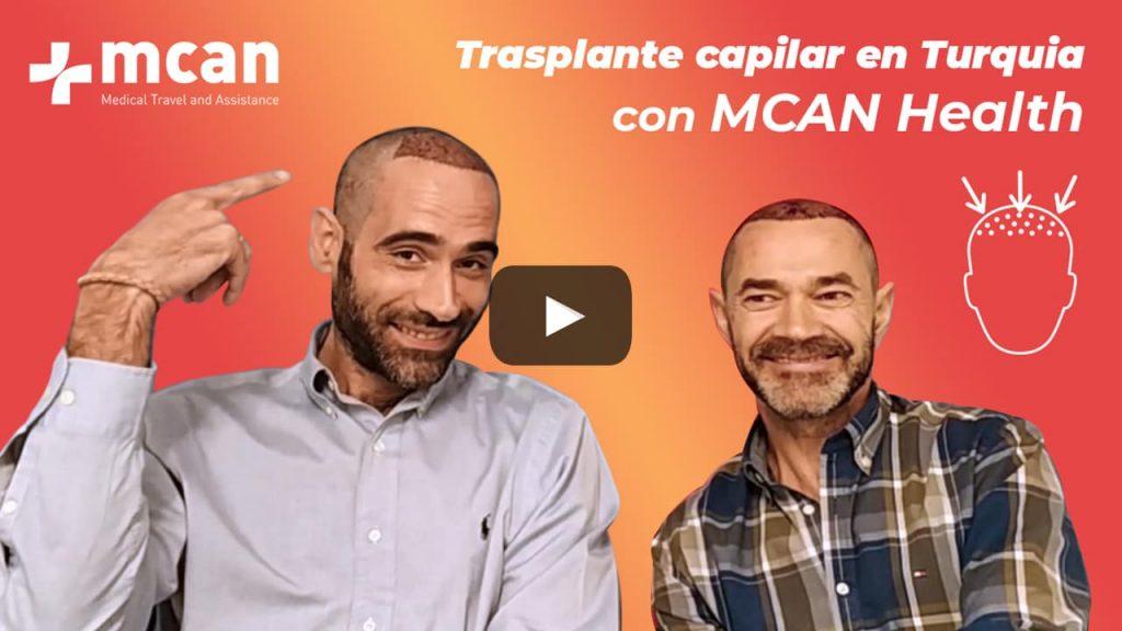 El trasplante capilar en Turquía de Sergio y Javier con MCAN Health