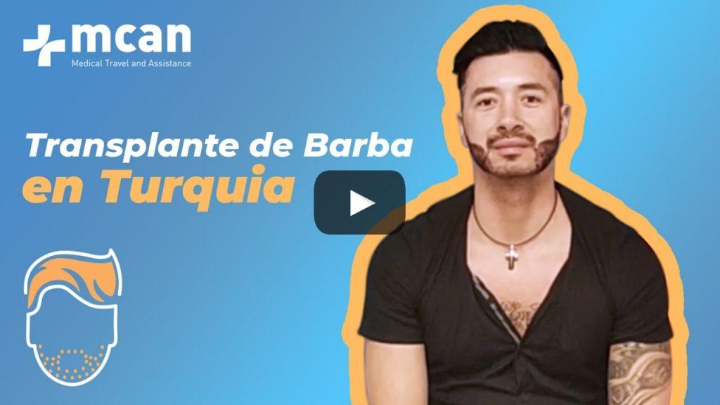 El trasplante de barba en Turquía de Ramon con MCAN Health