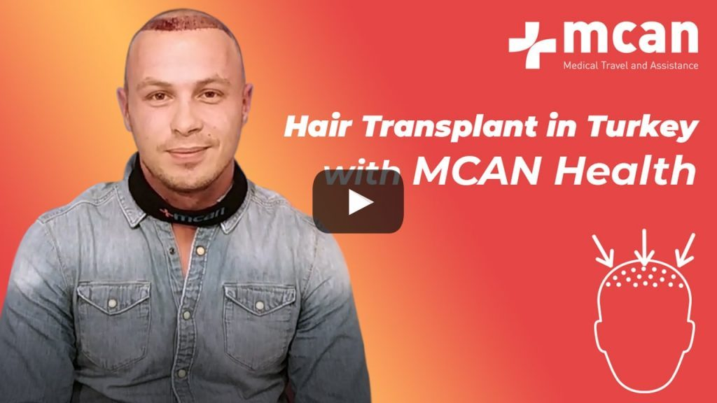 Hair Transplant in Turkey Review: Ricky's Hair Transplant with MCAN Health
