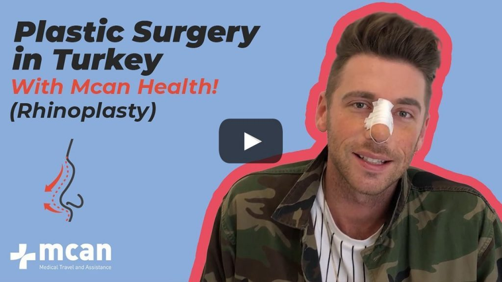 Rhinoplasty in Turkey - Scott from the UK with MCAN Health