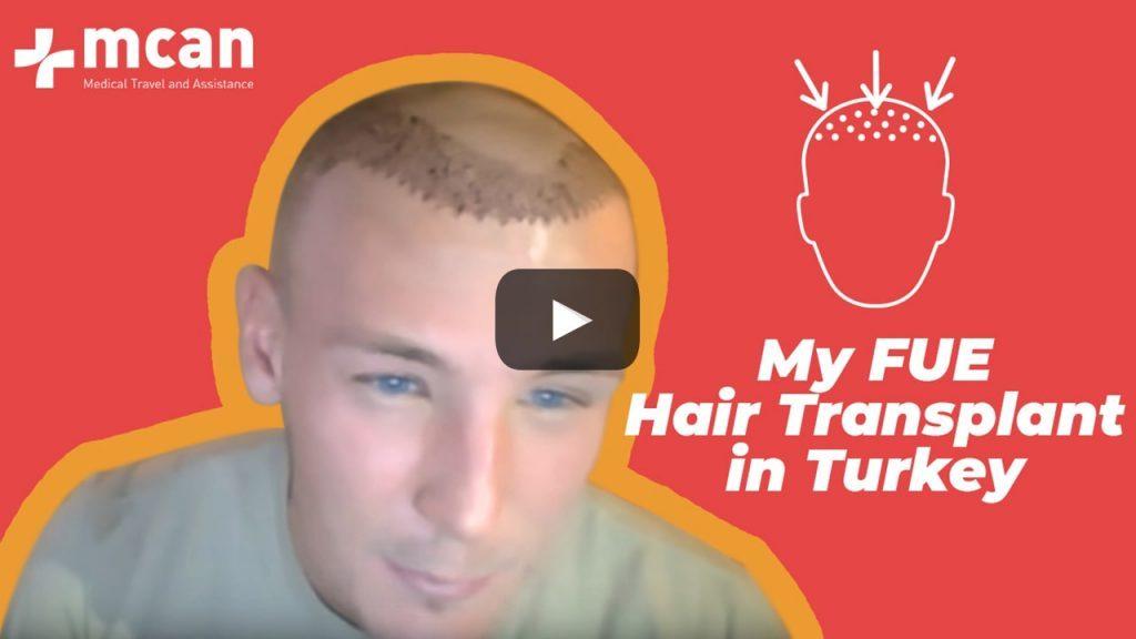 Sam Modlinsky: Watch Sam's In-depth Journal of Hair Transplantation