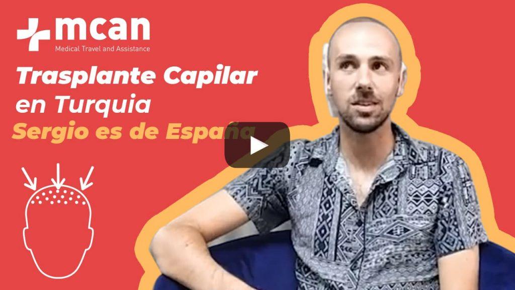 Trasplante Capilar en Turquia - Sergio es de España