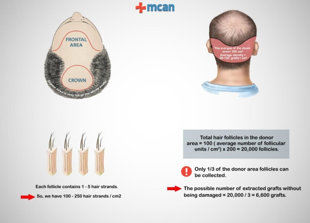 The number of grafts suitable to be transplanted during hair transplant