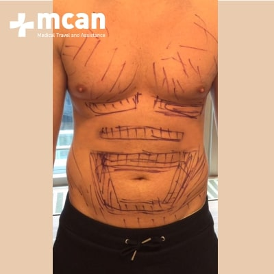 2a-liposuction-surgery-treatment-mcan