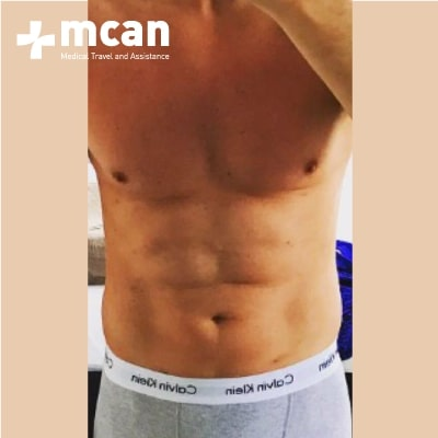 2b-liposuction-surgery-treatment-mcan