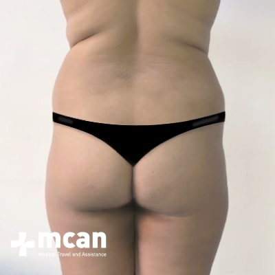 3a-liposuction-surgery-treatment-mcan