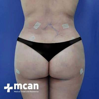 3b-liposuction-surgery-treatment-mcan