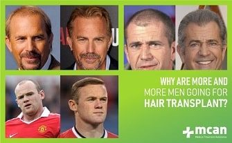 why are more men getting hair transplant