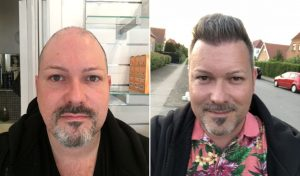 Danish Celebrity Morten Bo Had Hair Transplant in Turkey