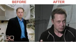 elon musk before after hair transplant