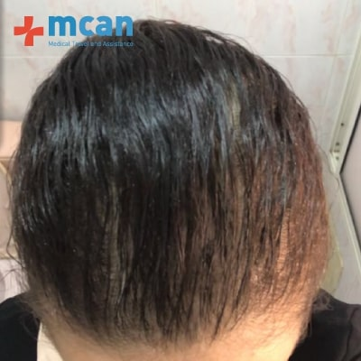g2-hair-transplant-turkey-before-after