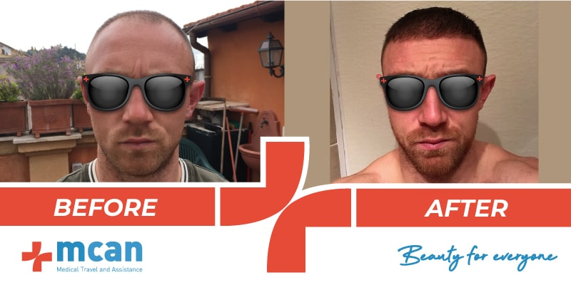 Hair Transplant Before After 12 03 19 1