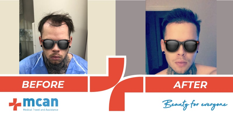 Hair Transplant Before After 12 03 19 2
