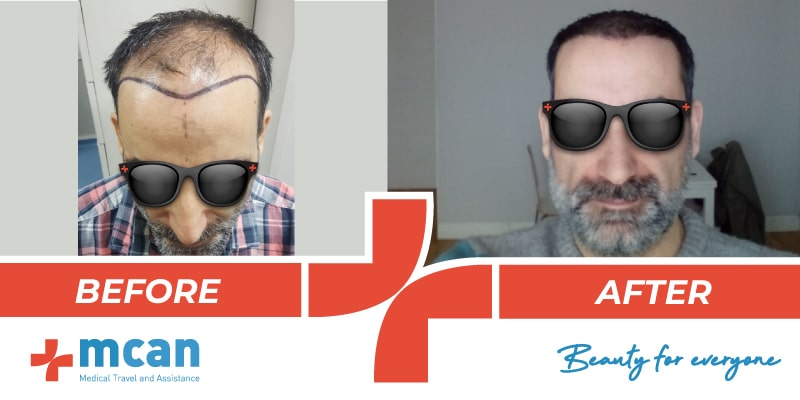 Hair Transplant Before After 12 03 19 3