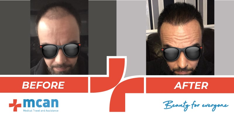 Hair Transplant Before After 12 03 19 4