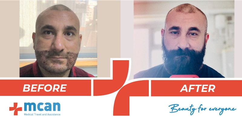 Hair Transplant Before After 12 03 19 5