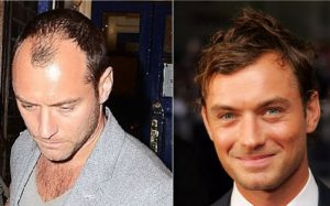 Jude Law Hair Transplant